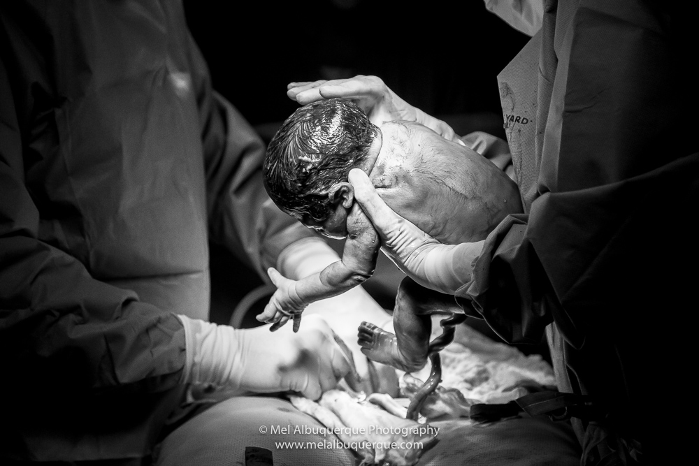 Momento do nascimento do bebê